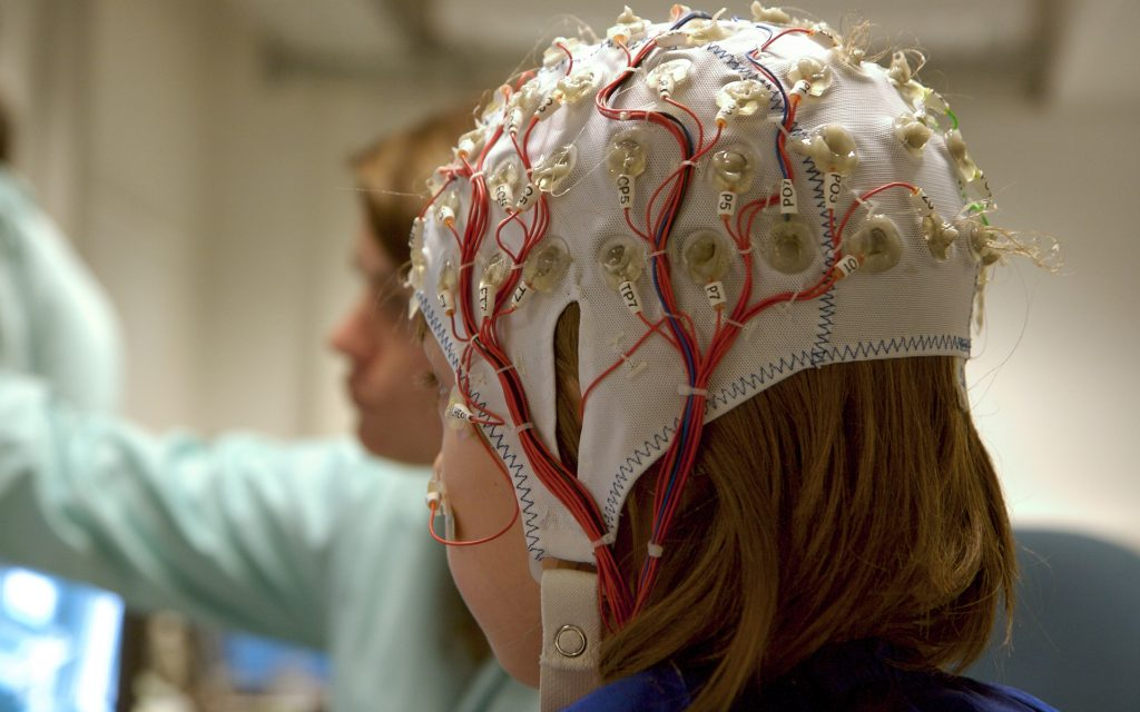 EEG tests can help learn more about epilepsy causes