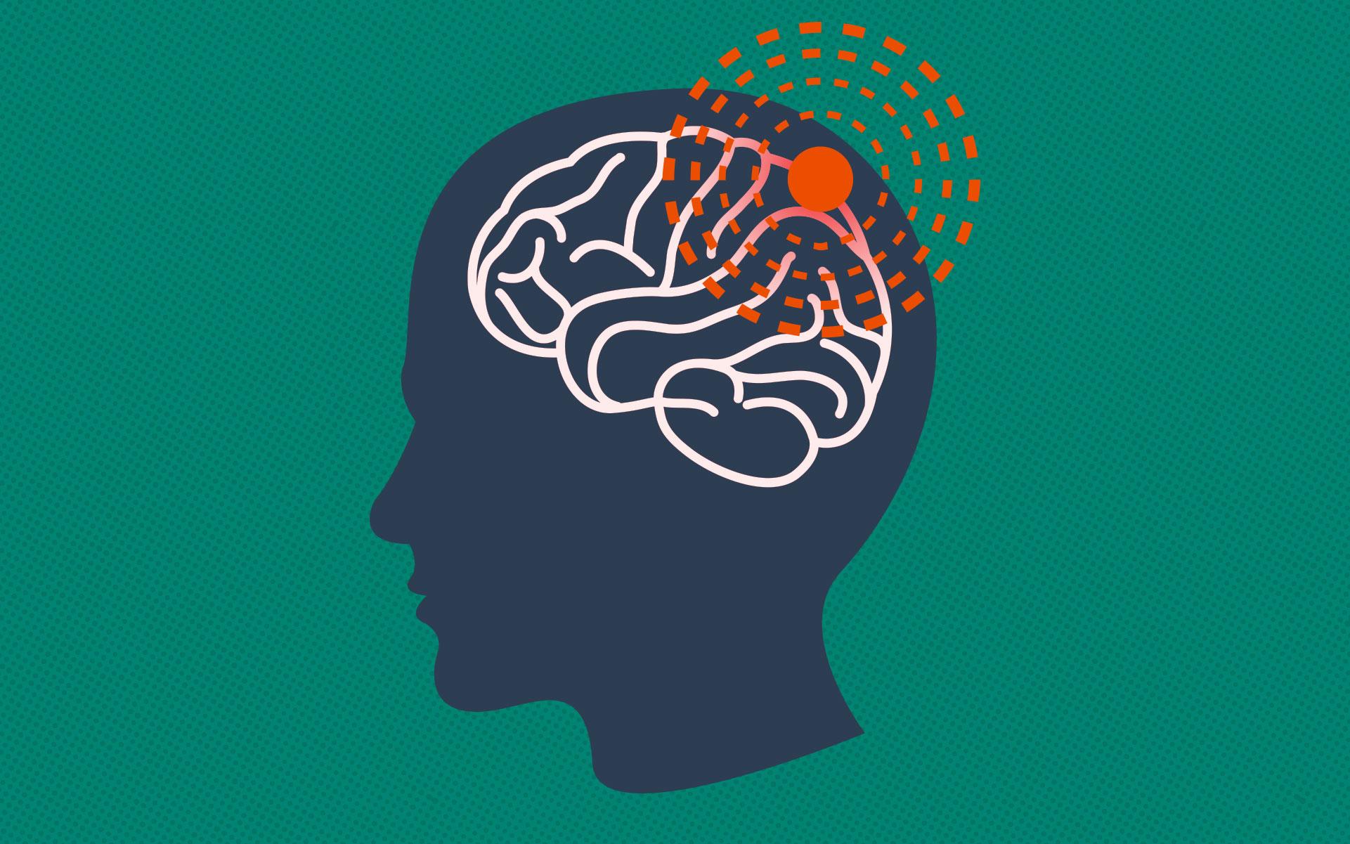 Best CBD Oil for Migraines: Benefits ...cfah.org